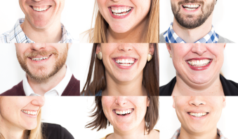 Laughter-Health-Benefits